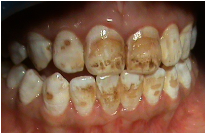 Tooth Stain or Discoloration