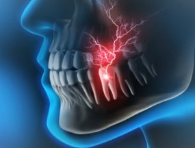 Toothache or Dental Pain