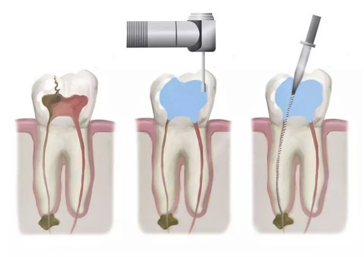 Root canal treatment or RCT