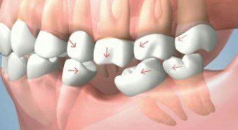 Missing tooth can cause Shifting of teeth position