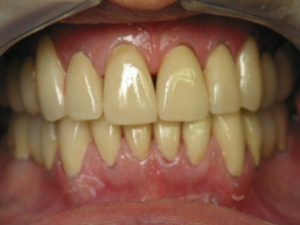 Yellow Teeth- Know Cause, Prevention & Treatment